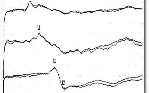 Γράφημα 5
